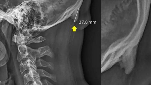 Novos ossos estão a crescer nos crânios dos jovens devido ao uso excessivo do telemóvel