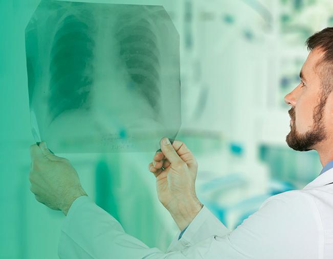 Cancro de Pulmão | Rede Ibero-americana